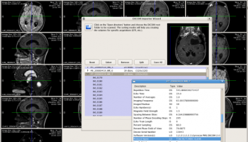 MedINRIA x64 screenshot